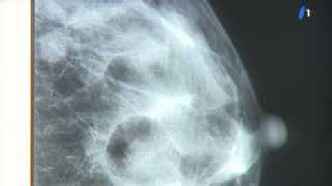 Hormones et cancer du sein: lien confirmé!