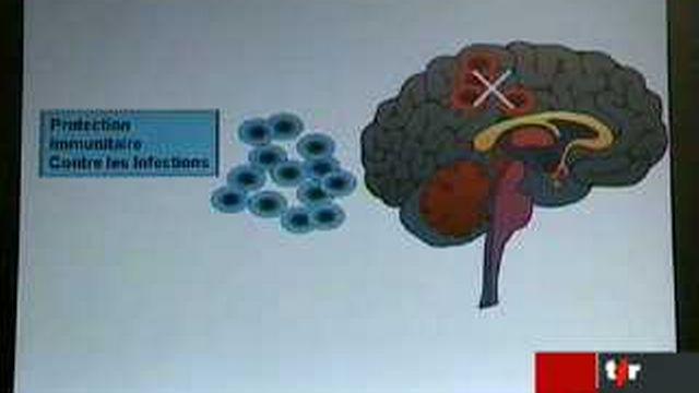 Santé: une équipe zurichoise identifie l'origine de la sclérose en plaques
