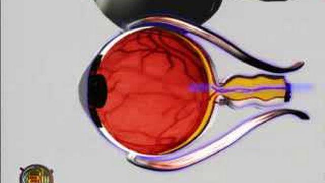 Médecine : l'oeil bionique, un espoir pour les aveugles