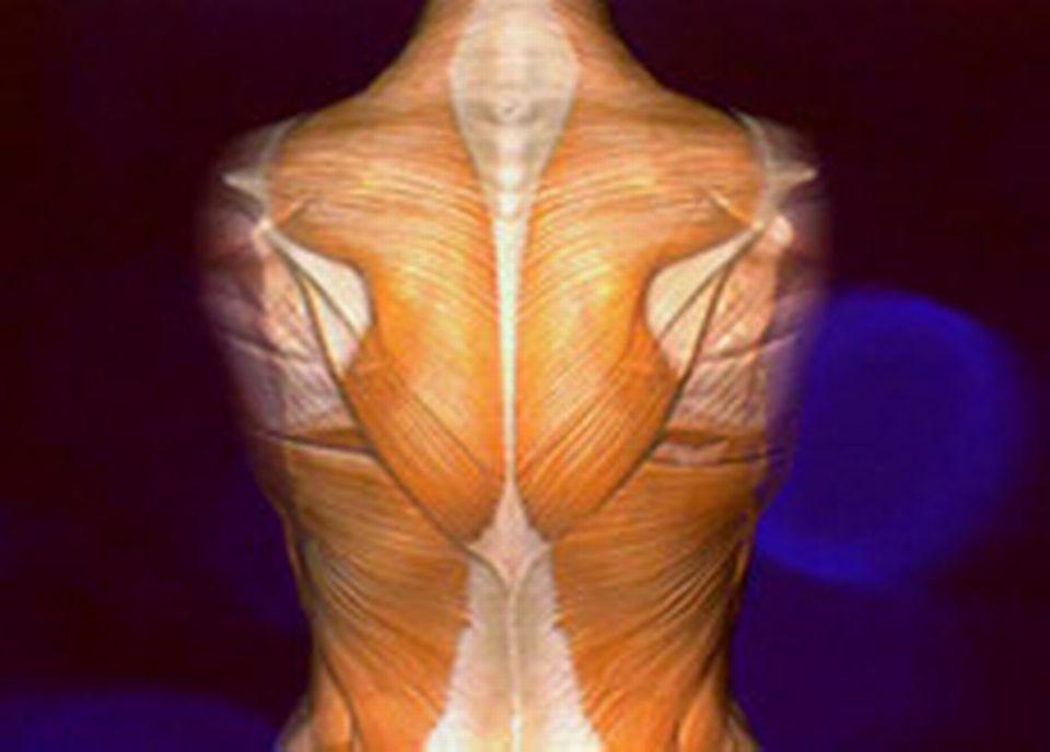 La colonne vértébrale est indissociable du réseau musculaire qui peut être à l'origine des douleurs dorsales