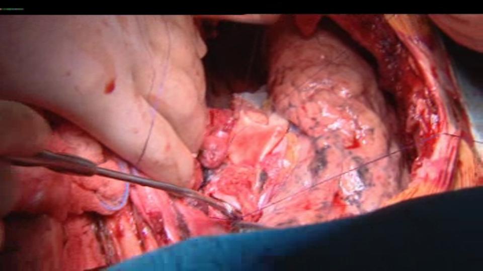 La greffe de poumons est l'une des opérations chirurgicales les plus délicates.