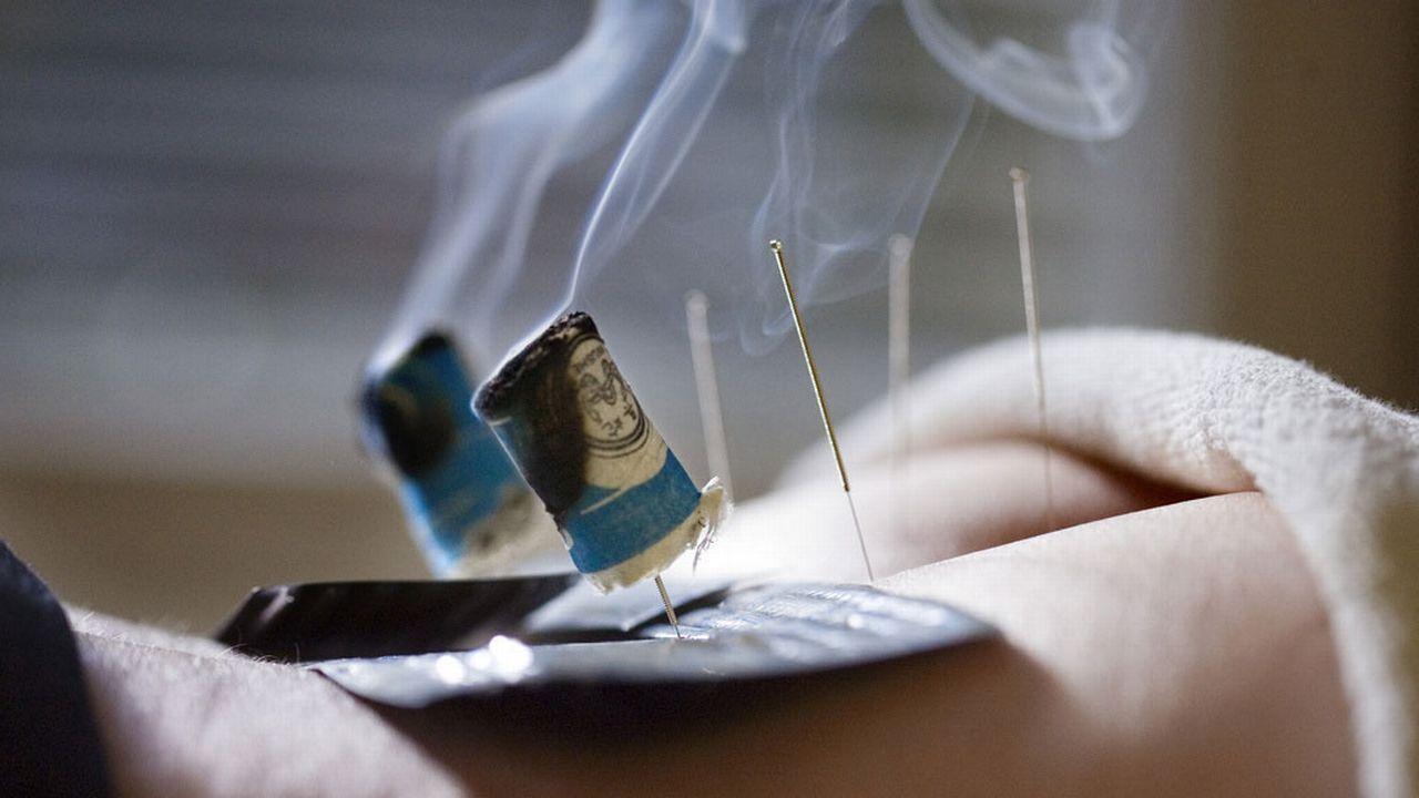 La médecine traditionnelle chinoise fait partie des thérapies contestées. [Gaëtan Bally - Keystone]