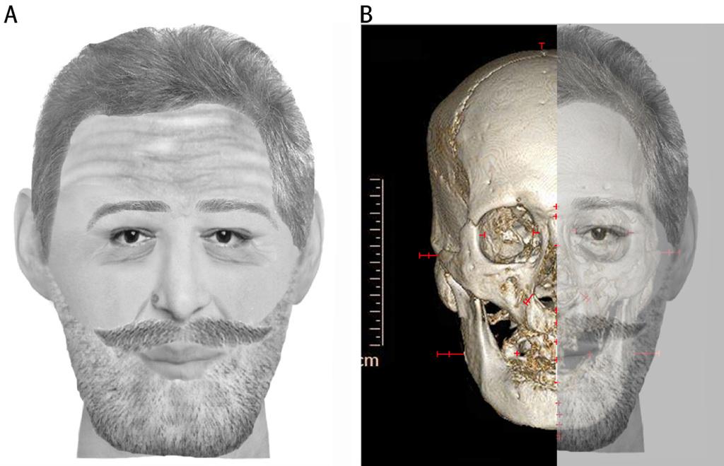 Exceptionnel Le crâne de René Descartes, passé au scanner, révèle une tumeur  BC37