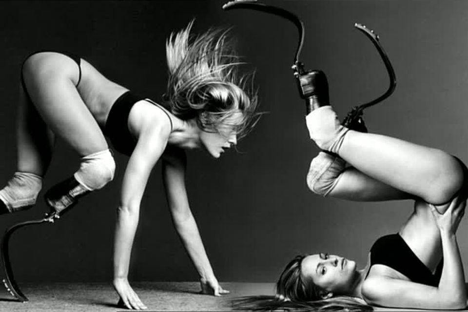 La mannequin américaine Aimee Mullins. [RTS]