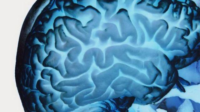 La maladie d'Alzheimer, ou la dégénérescence des cellules du cerveau.