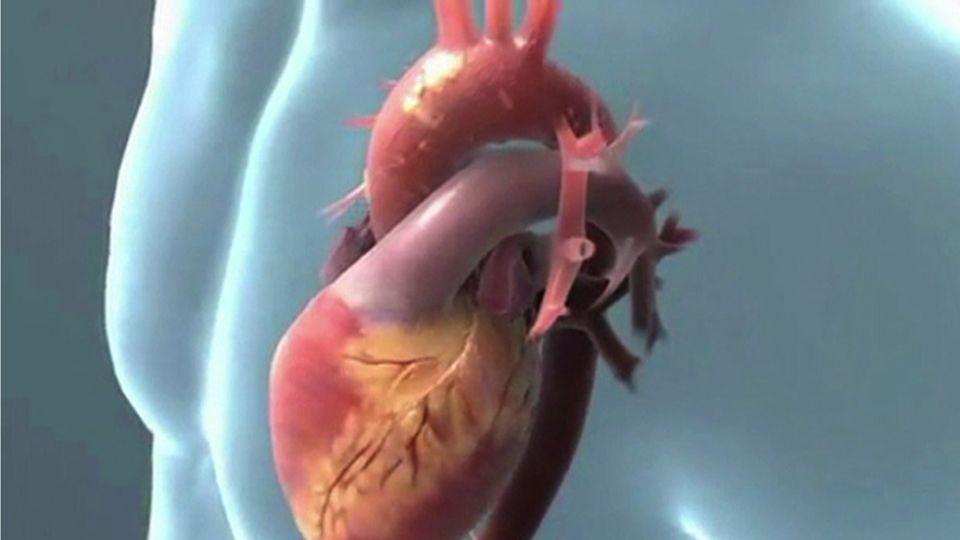 Le cholestérol, une polémique médicale planétaire.