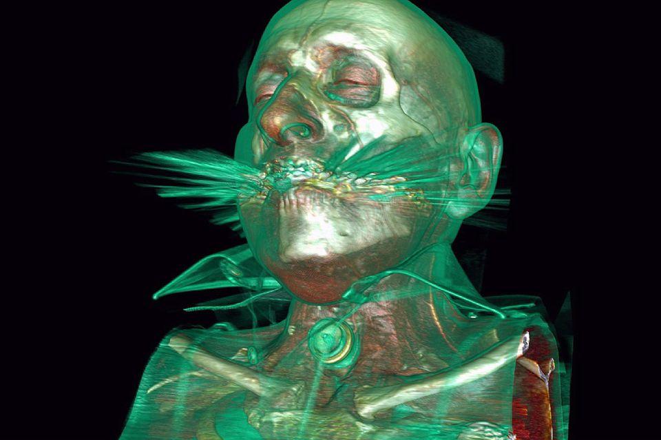 L'imagerie et la médecine nucléaire permettent de voir le fonctionnement du traitement des tumeurs. [RTS]