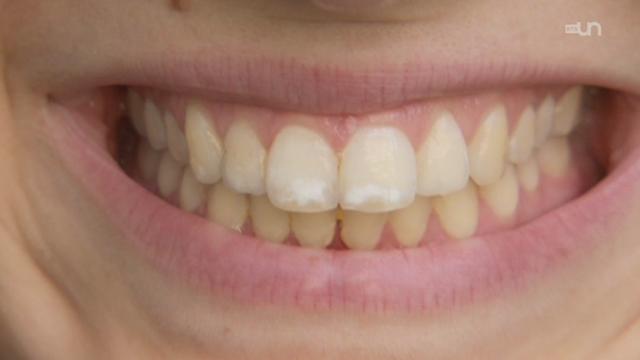 Tarifs dentaires: édentés ou endettés?