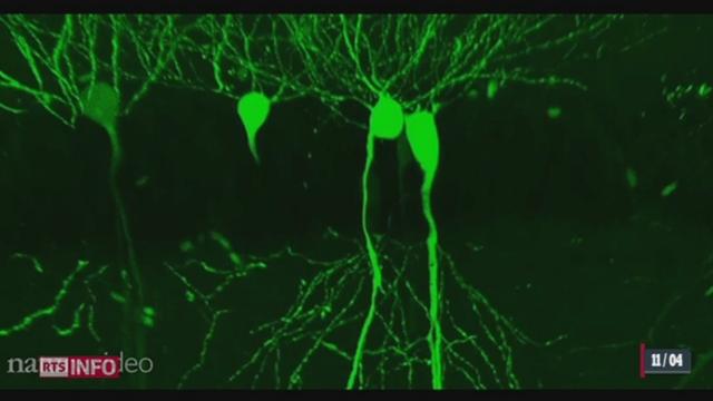Des chercheurs américains ont pu repérés des anomalies liées à l'autisme [RTS]