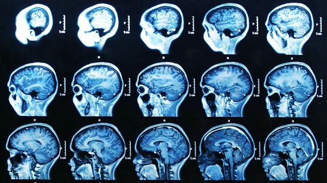 5. Quels outils pour observer le cerveau? [© bunyos  - Fotolia]
