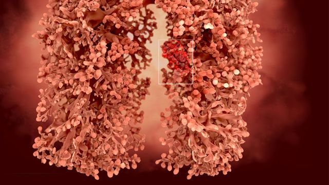 Le cancer du poumon peut être dû à une exposition à l'amiante. Juan Gärtner Fotolia [Juan Gärtner - Fotolia]