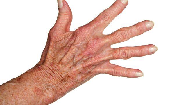 La chirurgie peut-elle soulager l'arthrite de la main? [Peterfactors - Fotolia]
