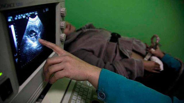 Le remboursement de l'avortement par l'assurance maladie de base est remis en question par une initiative soumise au peuple le 9 février 2014. [AP/Ng Han Guan - Keystone]