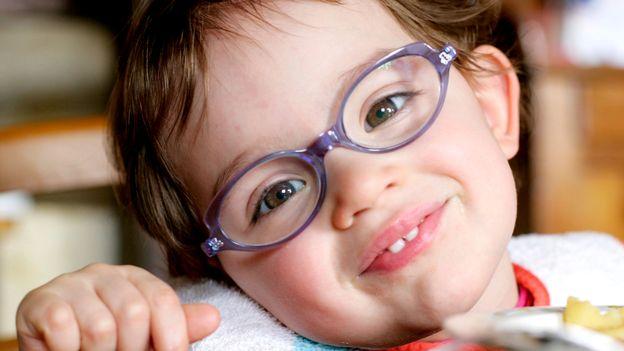 La myopie progresse chez des enfants de plus en plus jeunes - rts.ch -  Sciences-Tech. 3b6e90ed2c8a