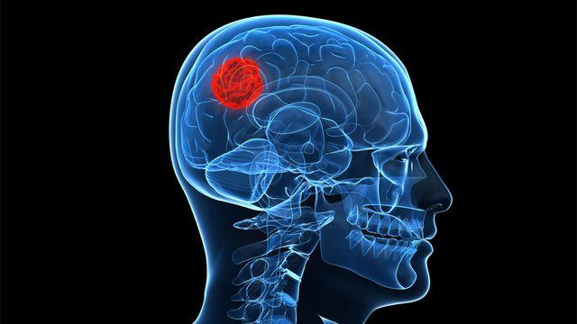 Représentation d'une tumeur au cerveau. Sebastian Kaulitzki Fotolia [Sebastian Kaulitzki - Fotolia]
