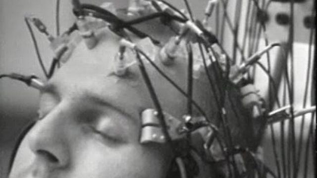 Etudes de cas et impressionnante opération de neurochirurgie en 1969. [RTS]