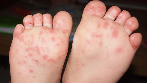 maladie pieds mains bouche