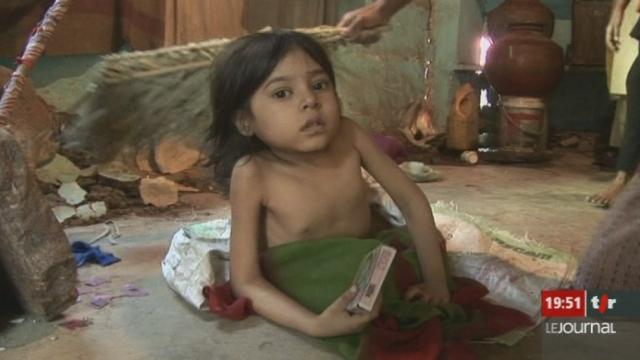 Enfant souffrant de malformations à Bhopal en 2009. [RTS]