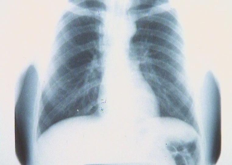 Exit la tuberculose?