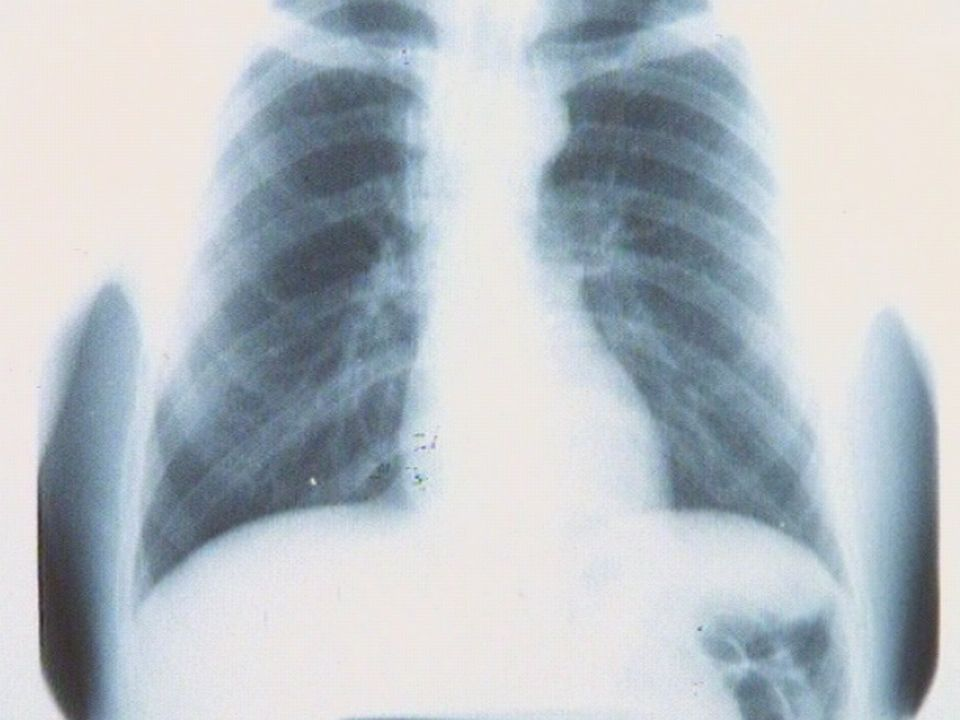 La tuberculose en Suisse. [RTS]