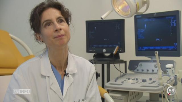 Santé: le stérilet est à nouveau recommandé par les gynécologues [RTS]