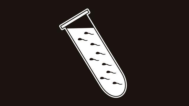 Obtenir des spermatozoïdes à partir de prélèvements effectués chez des hommes infertiles est désormais possibles. janista Fotolia [janista - Fotolia]
