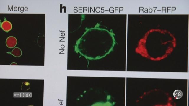 Une découverte pourrait permettre d'améliorer le traitement contre le SIDA [RTS]
