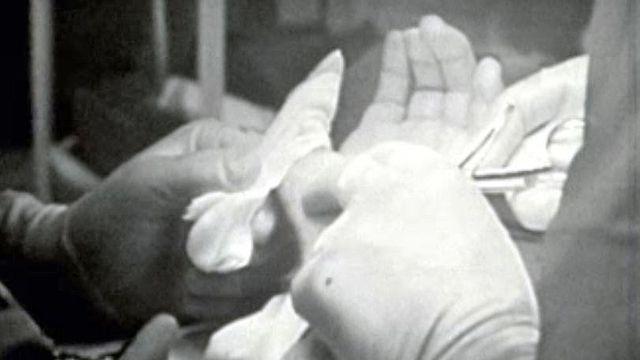 Une opération aux côtés du professeur Claude Verdan.