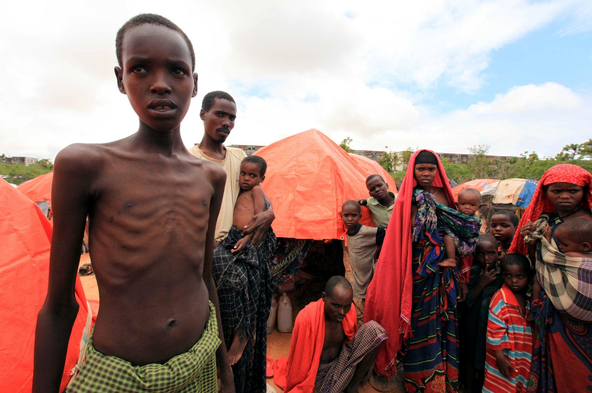 Plus D Un Million D Enfants Victimes De Malnutrition Aigu 235