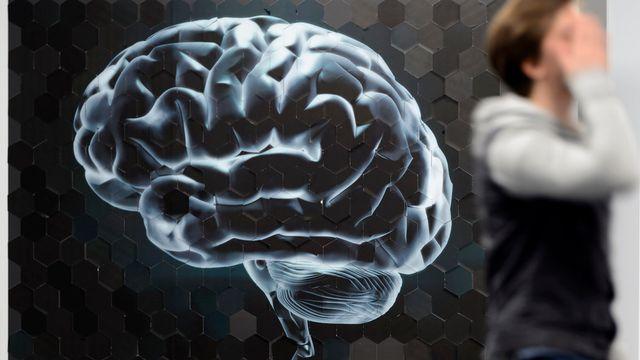 Une image géante d'un cerveau en marge de la conférence de presse sur le campus Biotech à Genève. [Laurent Gillieron - Keystone]