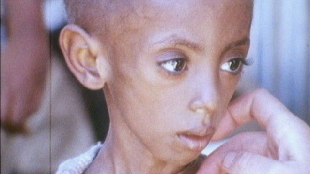 Enfant souffrant de malnutrition en Ethiopie en 1973. [RTS]