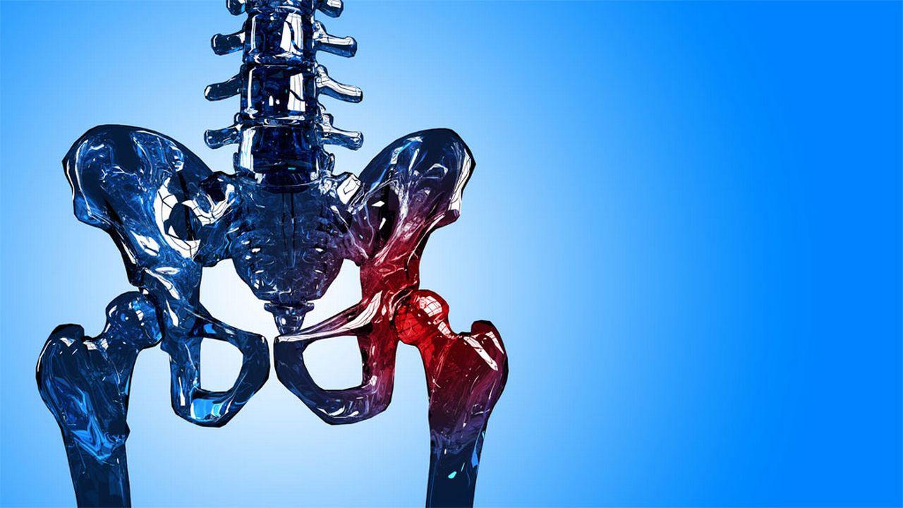 L'ostéoporose rend le squelette fragile. Szabolcs Szekeres Fotolia [Szabolcs Szekeres - Fotolia]