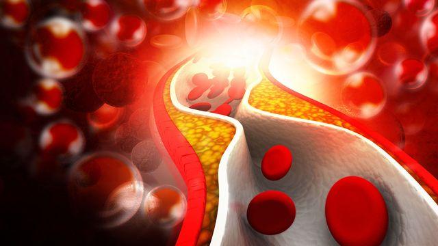 """Un taux sanguin élevé en """"mauvais"""" cholestérol augmente le risque d'athérosclérose. [hywards - fotolia]"""