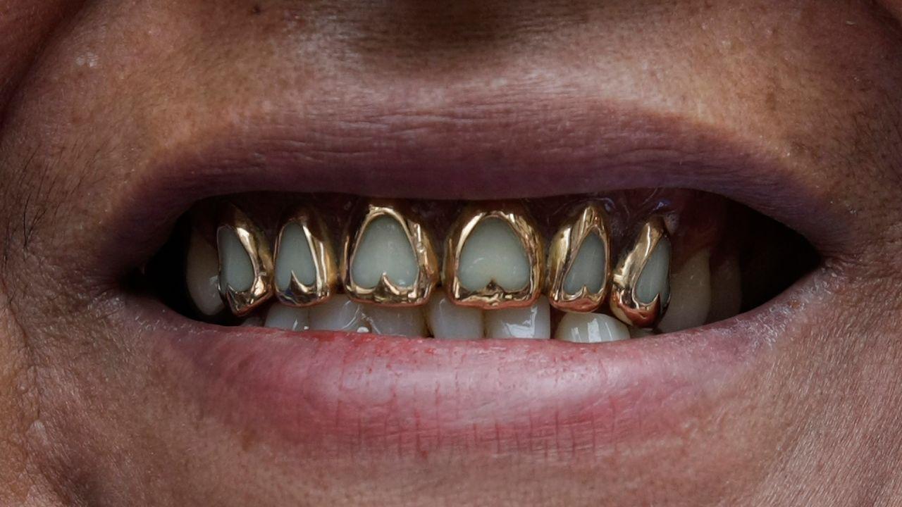 La Croix-Rouge suisse récolte chaque année une vingtaine de kilos d'or dentaire. [David Mercado - Reuters]