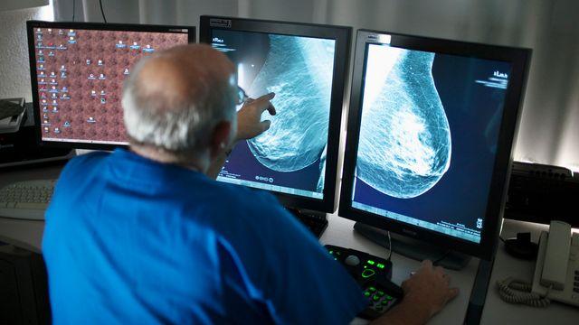 Une femme sur huit sera atteinte d'un cancer du sein au cours de sa vie. [Gaëtan Bally - Keystone]