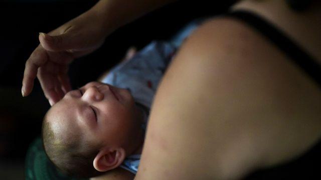 Si une femme est infectée par le virus, elle court un plus grand risque de donner naissance à un enfant avec une malformation du cerveau, connue sous le nom de microcéphalie. [Carlos Giusti - Keystone/AP Photo]