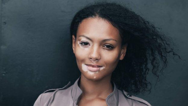 vitiligo singles Dating PDA sens datant