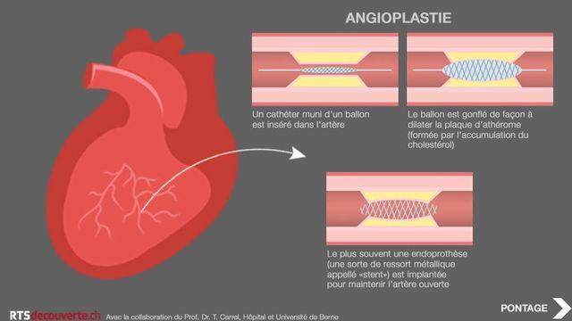 Infographie du dossier de RTSdécouverte sur le coeur. [RTS Découverte - Agnès Rubin]