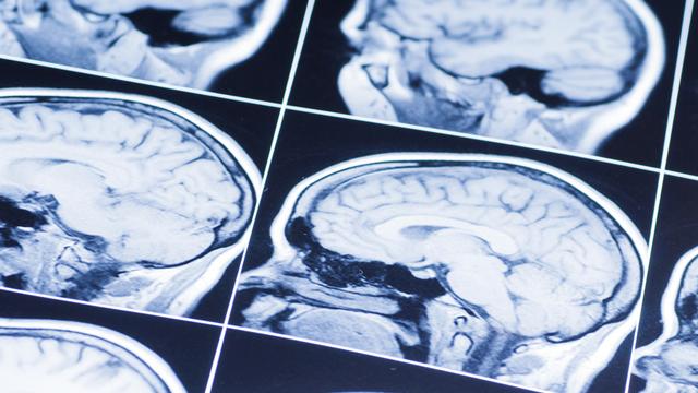 Le cerveau est le siège de notre pensée. [Сергей Лабутин - Fotolia]