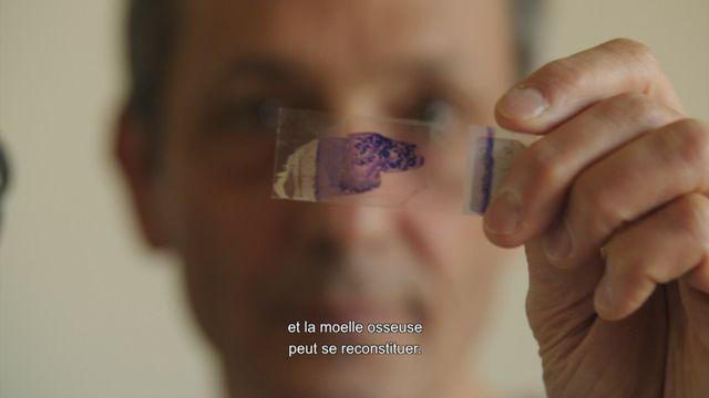Cancer au quotidien : Les greffes [RTS]