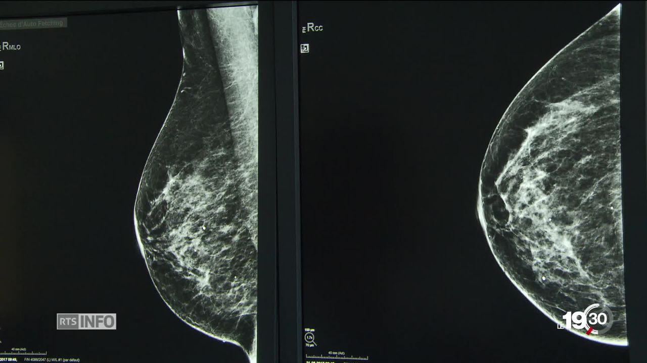Cancer du sein, découverte majeure: Les chimiothérapies peuvent être évitées dans de nombreux cas [RTS]