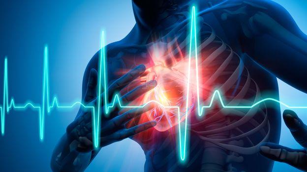"""Résultat de recherche d'images pour """"Maladies cardiovasculaires"""""""