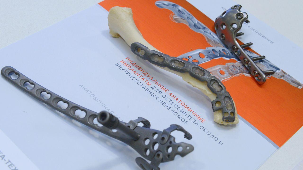 Des implants anatomiques pour des fractures intra-articulaires de fabrication russe. (Image d'illsutration) [AFP]