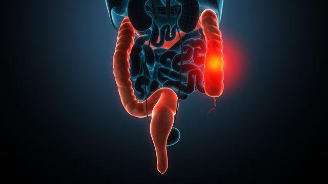 L'inflammation due à la maladie de Crohn peut toucher n'importe quelle partie du tube digestif. unlimit3d Fotolia [unlimit3d - Fotolia]