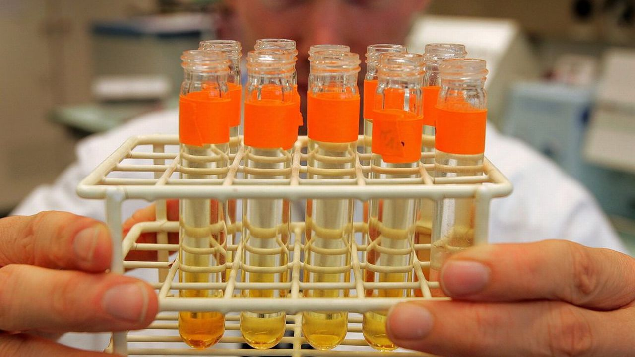 Des tests d'urine. [Fabrice Coffrini - Keystone]