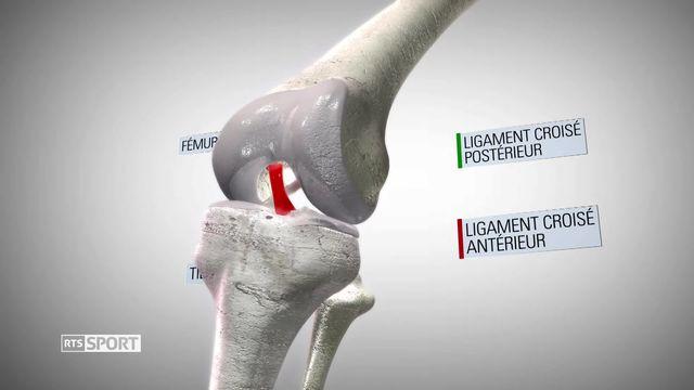 Le Mag: déchirure des ligaments croisés, le fléau des sportifs [RTS]