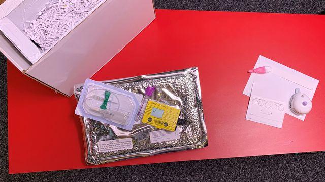 A gauche, le kit d'analyse de dopage utilisé de nos jours. A droite, le nouveau kit en attente d'homologation. Sébastien Blanc RTS [Sébastien Blanc - RTS]