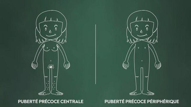 Toujours plus de pubertés précoces [RTS]