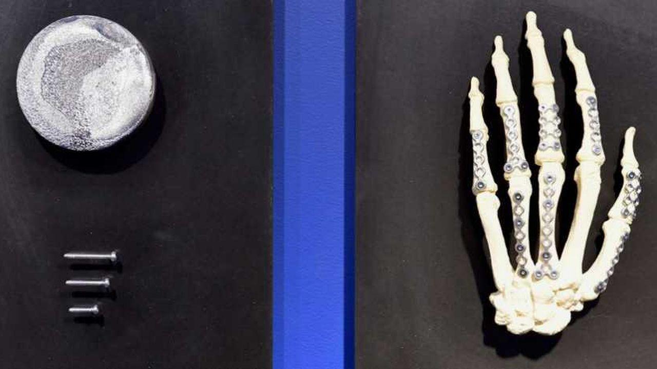 Des alliages de magnésium, zinc et calcium peuvent être utilisés comme implants biorésorbables pour réparer les os cassés.  [ETH Zurich]