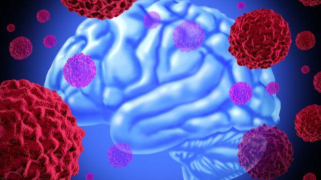 Comme le cerveau, les tumeurs contiennent des neurones. lightsource Depositphotos [lightsource - Depositphotos]